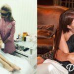 У девушки Дмитрия Тарасова Анастасии Костенко нашли костную аномалию